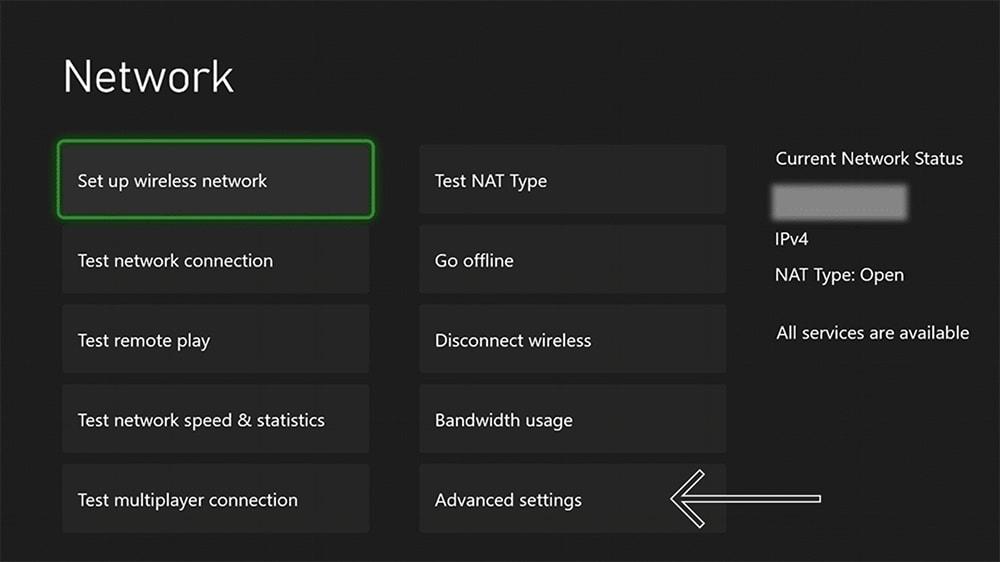 Setting Up Network Configuration Xbox